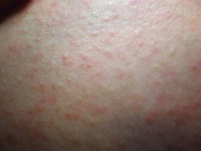 风疹病毒igg阴性
