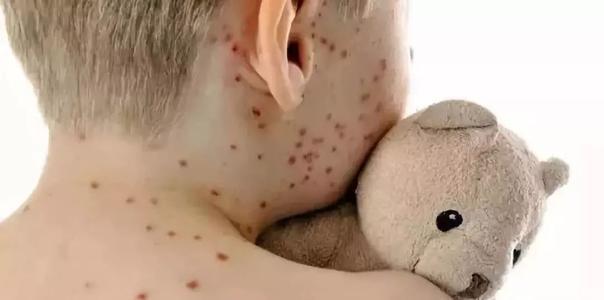 风疹怎么治疗